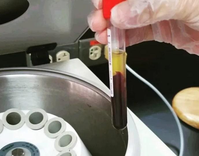 Serum Immediately After Centrifugation.